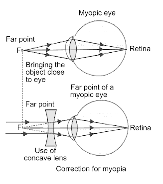 What Is Myopia State The Two Causes Of Myopia With The Help Of